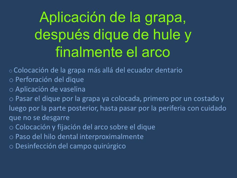 Aplicación de la grapa, después dique de hule y finalmente el arco o Colocación de la grapa más allá del ecuador dentario o Perforación del dique o Ap