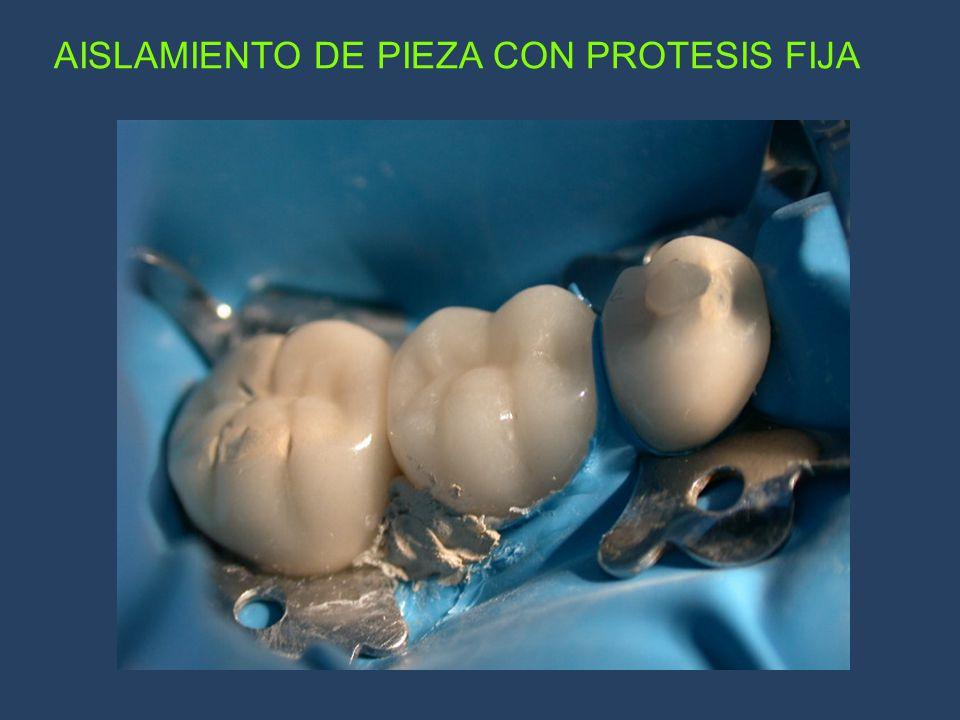 AISLAMIENTO DE PIEZA CON PROTESIS FIJA