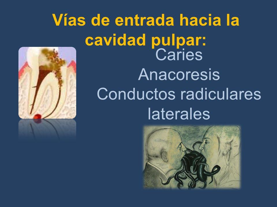 Vías de entrada hacia la cavidad pulpar: Caries Anacoresis Conductos radiculares laterales