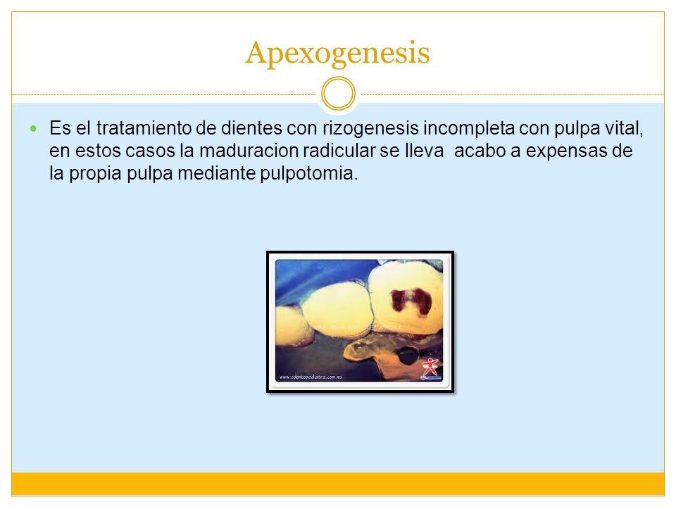 Apexogenesis Es el tratamiento de dientes con rizogenesis incompleta con pulpa vital, en estos casos la maduracion radicular se lleva acabo a expensas de la propia pulpa mediante pulpotomia.