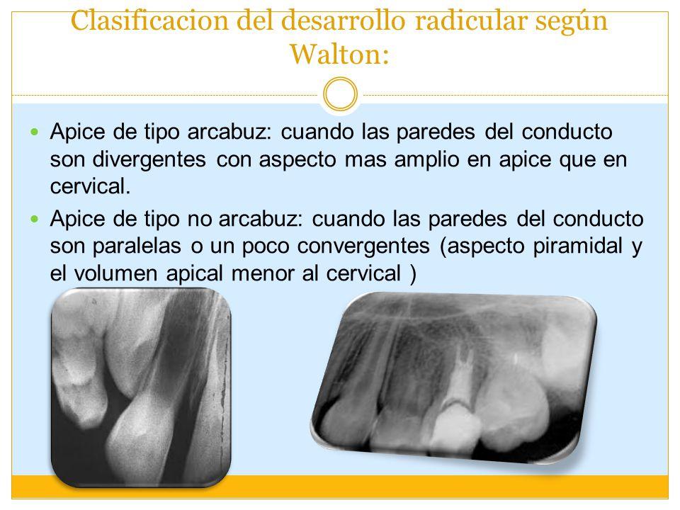 Clasificacion del desarrollo radicular según Walton: Apice de tipo arcabuz: cuando las paredes del conducto son divergentes con aspecto mas amplio en apice que en cervical.