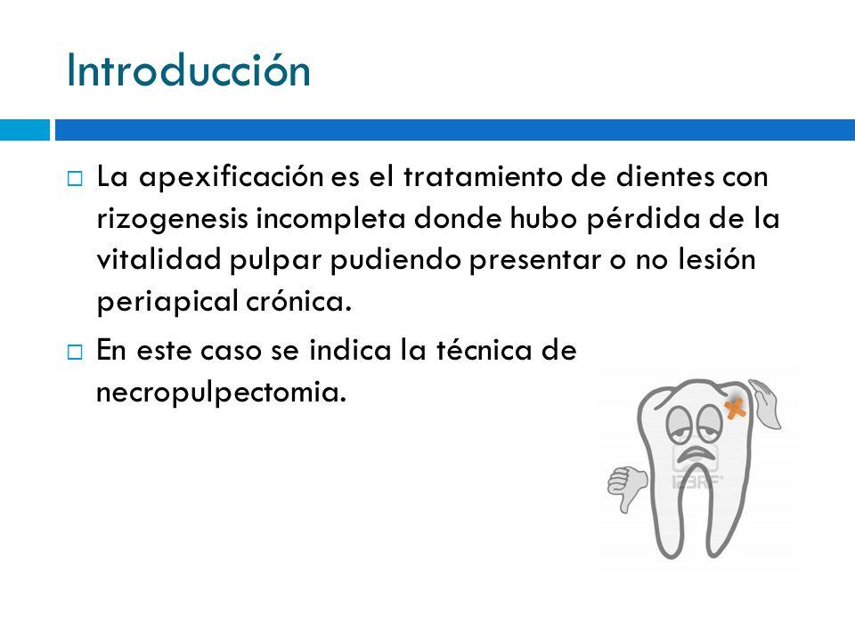 Introducción La apexificación es el tratamiento de dientes con rizogenesis incompleta donde hubo pérdida de la vitalidad pulpar pudiendo presentar o n