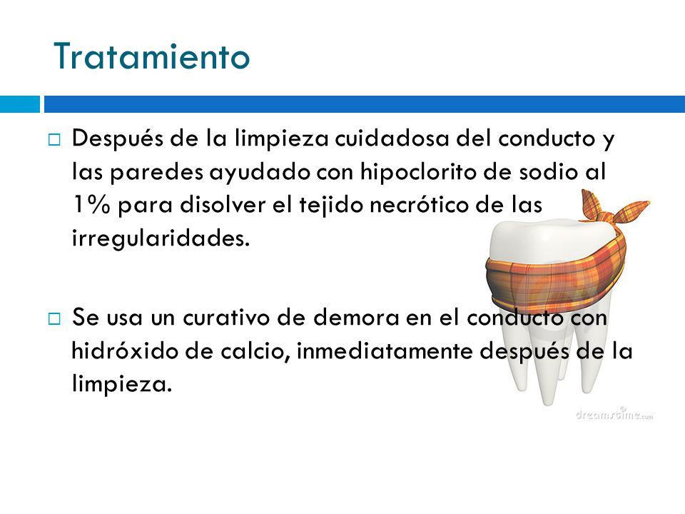 Tratamiento Después de la limpieza cuidadosa del conducto y las paredes ayudado con hipoclorito de sodio al 1% para disolver el tejido necrótico de la