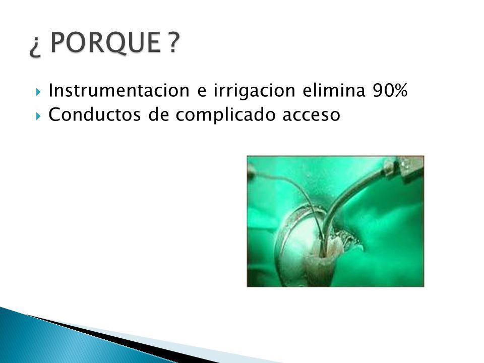 Instrumentacion e irrigacion elimina 90% Conductos de complicado acceso