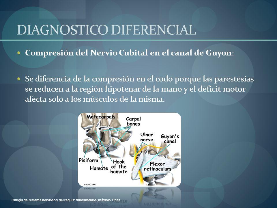 DIAGNOSTICO DIFERENCIAL Compresión del Nervio Cubital en el canal de Guyon: Se diferencia de la compresión en el codo porque las parestesias se reduce