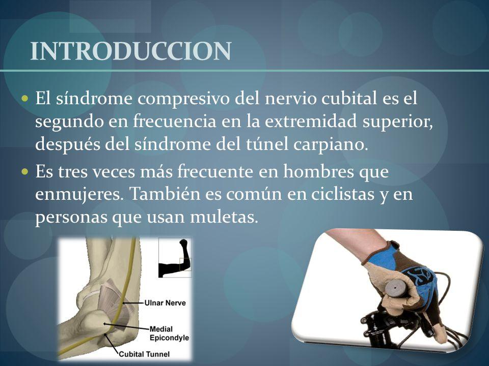 INTRODUCCION El síndrome compresivo del nervio cubital es el segundo en frecuencia en la extremidad superior, después del síndrome del túnel carpiano.