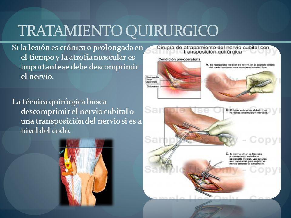 TRATAMIENTO QUIRURGICO Si la lesión es crónica o prolongada en el tiempo y la atrofia muscular es importante se debe descomprimir el nervio. La técnic