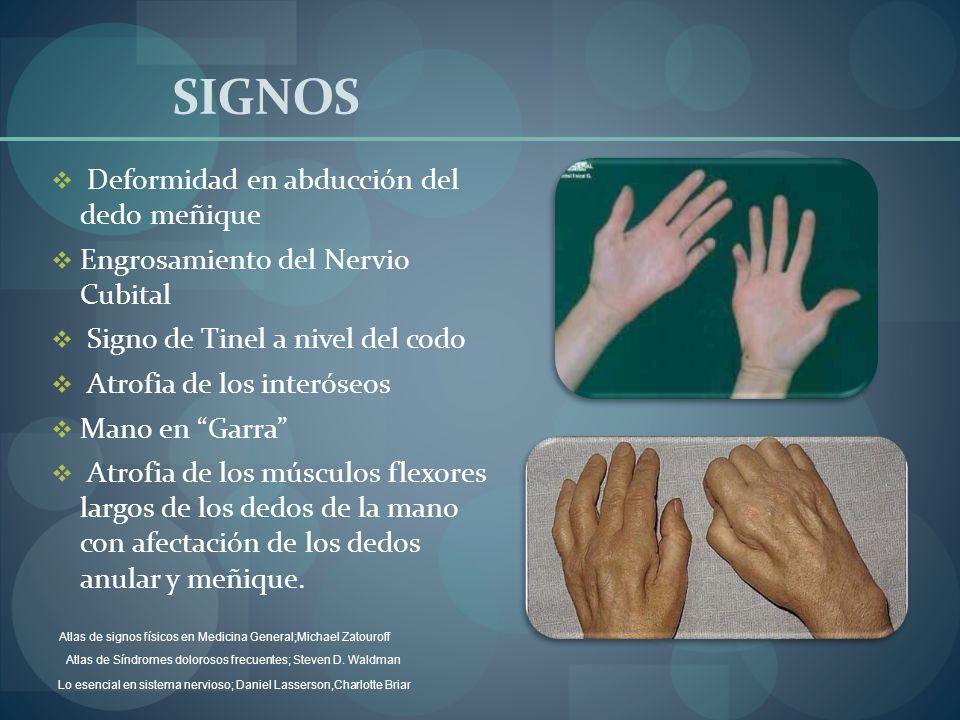 SIGNOS Deformidad en abducción del dedo meñique Engrosamiento del Nervio Cubital Signo de Tinel a nivel del codo Atrofia de los interóseos Mano en Gar