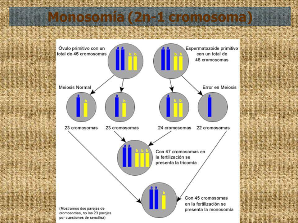 Monosomía (2n-1 cromosoma)