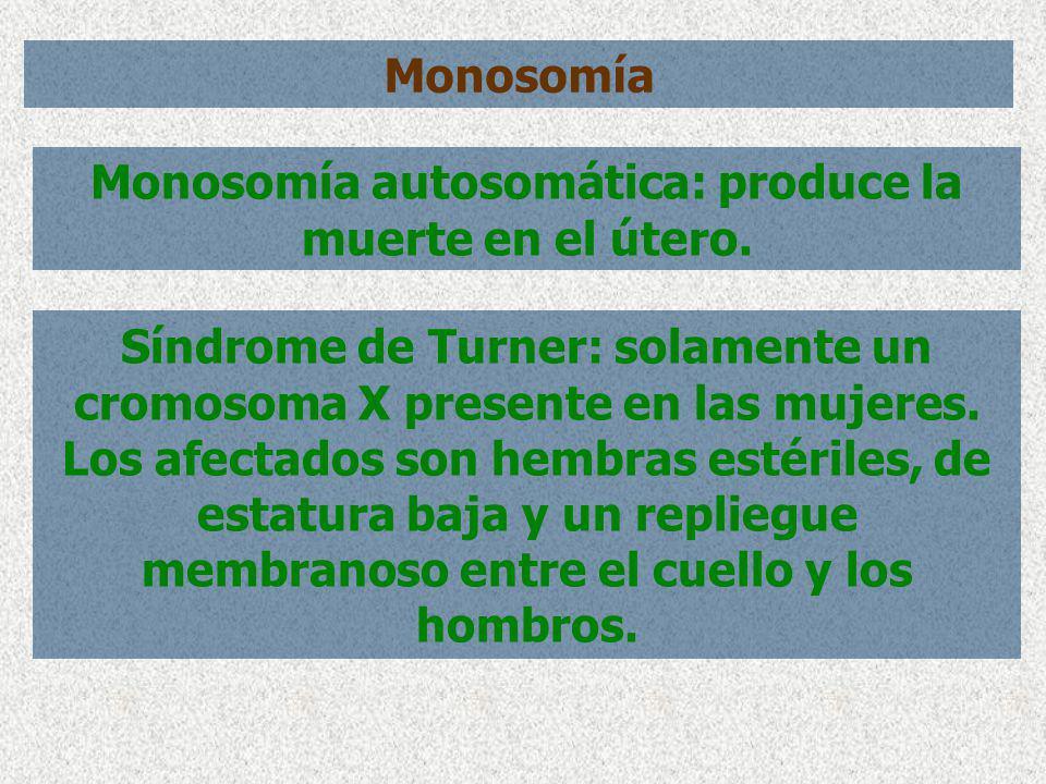Monosomía Monosomía autosomática: produce la muerte en el útero. Síndrome de Turner: solamente un cromosoma X presente en las mujeres. Los afectados s