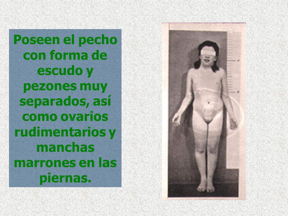 Poseen el pecho con forma de escudo y pezones muy separados, así como ovarios rudimentarios y manchas marrones en las piernas.