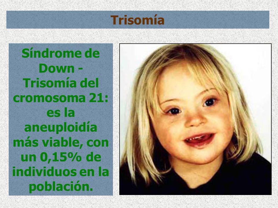 Síndrome de Down - Trisomía del cromosoma 21: es la aneuploidía más viable, con un 0,15% de individuos en la población. Trisomía