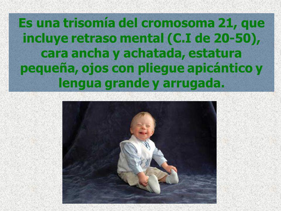 Es una trisomía del cromosoma 21, que incluye retraso mental (C.I de 20-50), cara ancha y achatada, estatura pequeña, ojos con pliegue apicántico y le