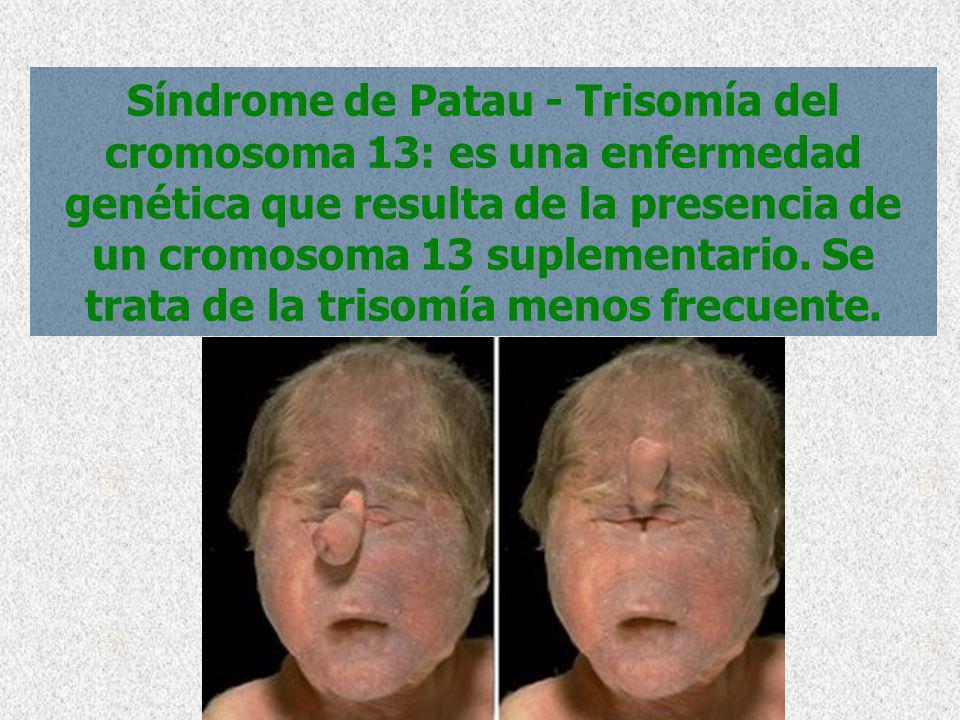 Síndrome de Patau - Trisomía del cromosoma 13: es una enfermedad genética que resulta de la presencia de un cromosoma 13 suplementario. Se trata de la