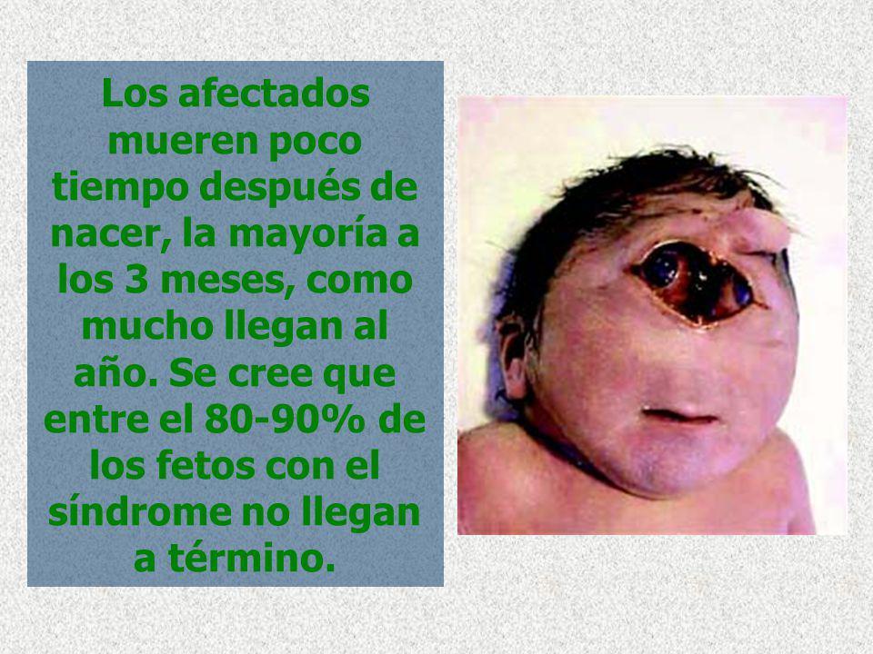 Los afectados mueren poco tiempo después de nacer, la mayoría a los 3 meses, como mucho llegan al año. Se cree que entre el 80-90% de los fetos con el