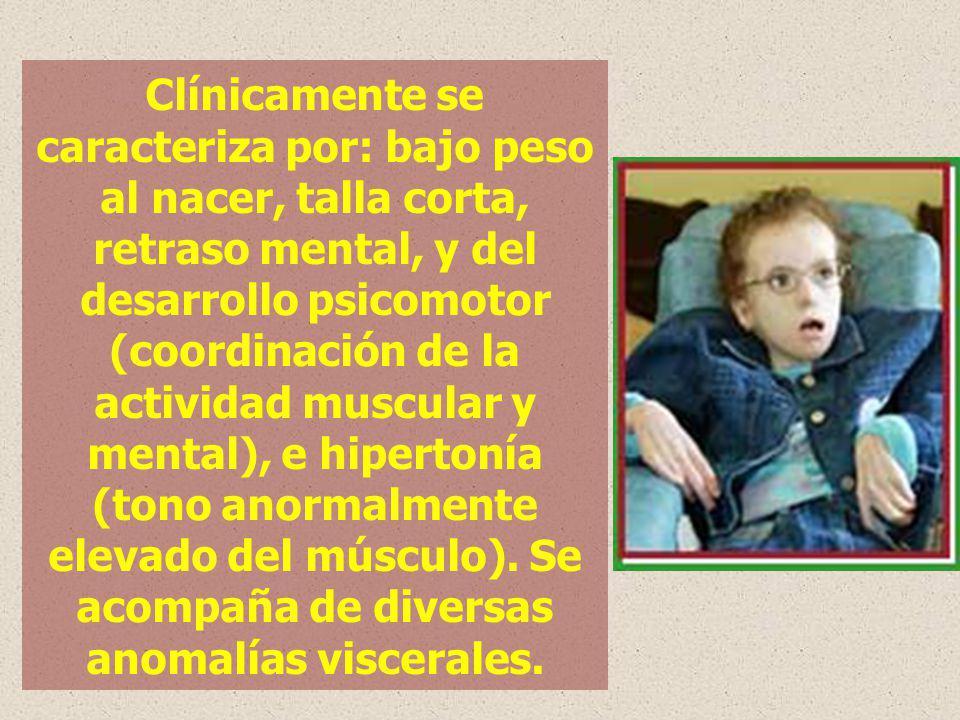 Clínicamente se caracteriza por: bajo peso al nacer, talla corta, retraso mental, y del desarrollo psicomotor (coordinación de la actividad muscular y