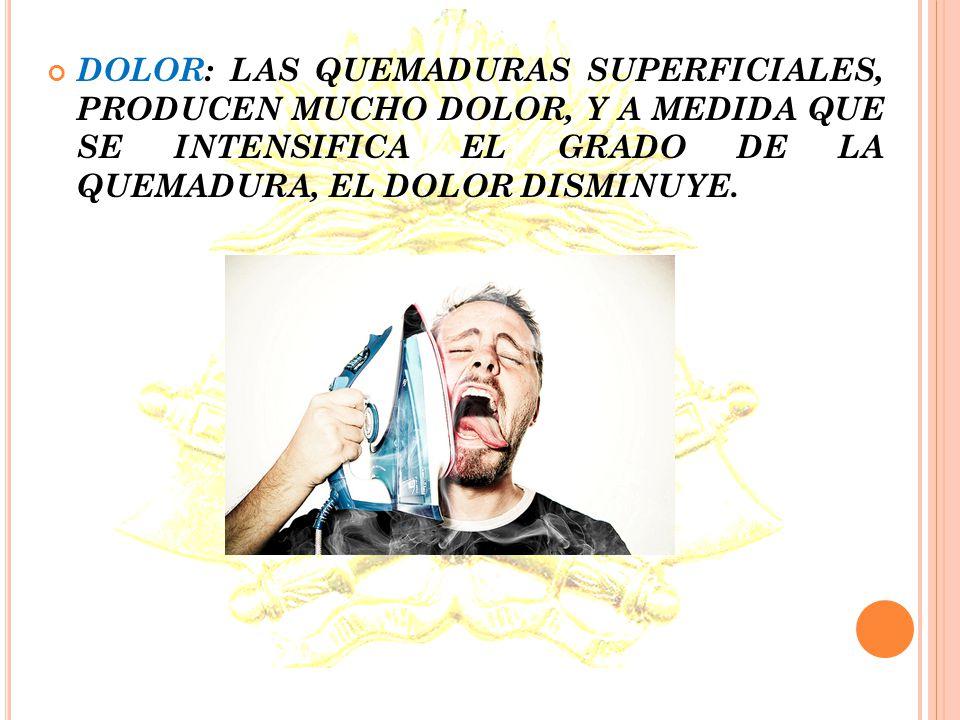 SINTOMAS QUEMADURAS EXTERNAS AMPOLLAS: SON UNA BARRERA DE PROTECCION QUE GENERA EL TEJIDO; EN SU INTRIOR CONTIENE PLASMA (UN COMPONENTE DE LA SANGRE)