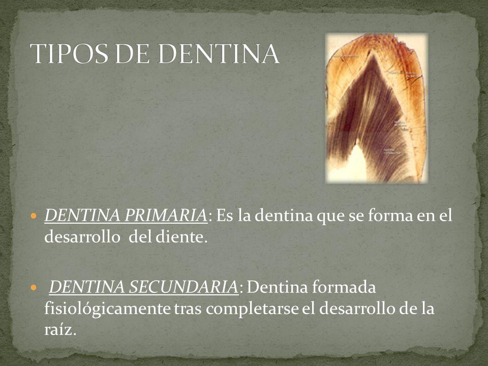 DENTINA PRIMARIA: Es la dentina que se forma en el desarrollo del diente.