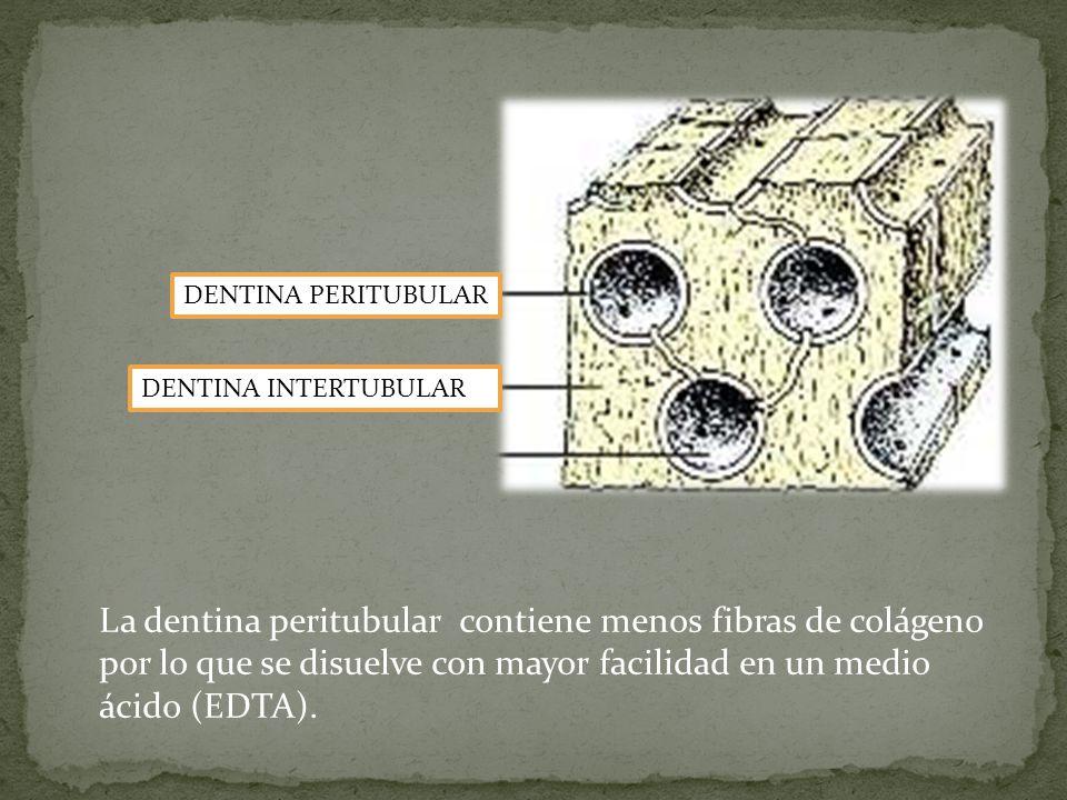 DENTINA PERITUBULAR DENTINA INTERTUBULAR La dentina peritubular contiene menos fibras de colágeno por lo que se disuelve con mayor facilidad en un medio ácido (EDTA).