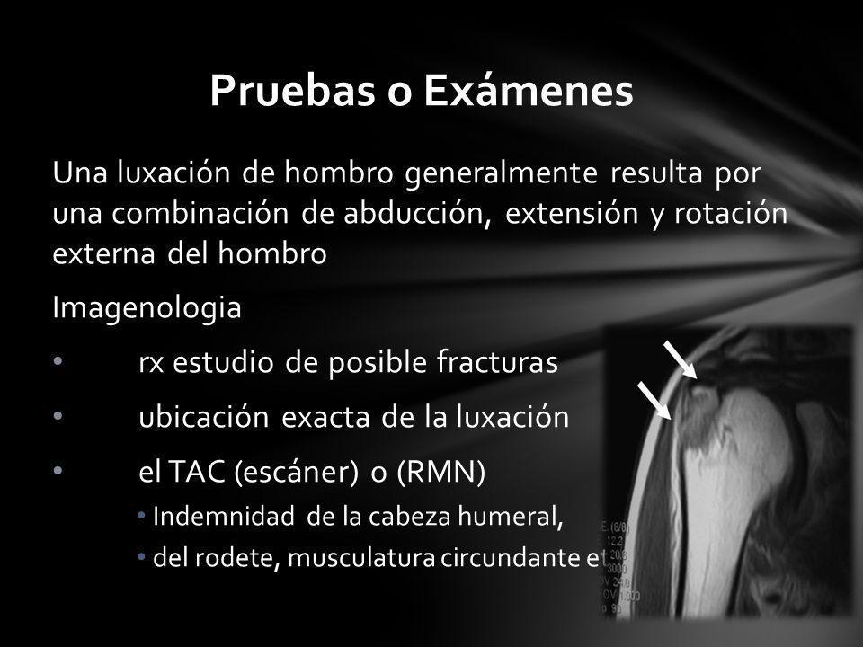 Pruebas o Exámenes Una luxación de hombro generalmente resulta por una combinación de abducción, extensión y rotación externa del hombro Imagenologia