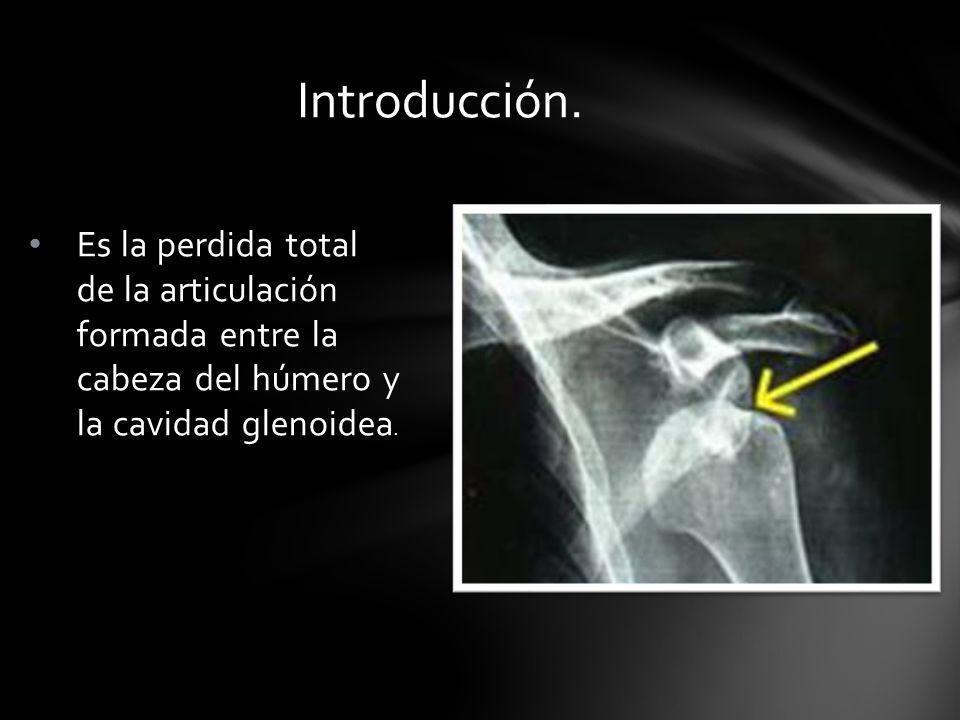 Es la perdida total de la articulación formada entre la cabeza del húmero y la cavidad glenoidea. Introducción.