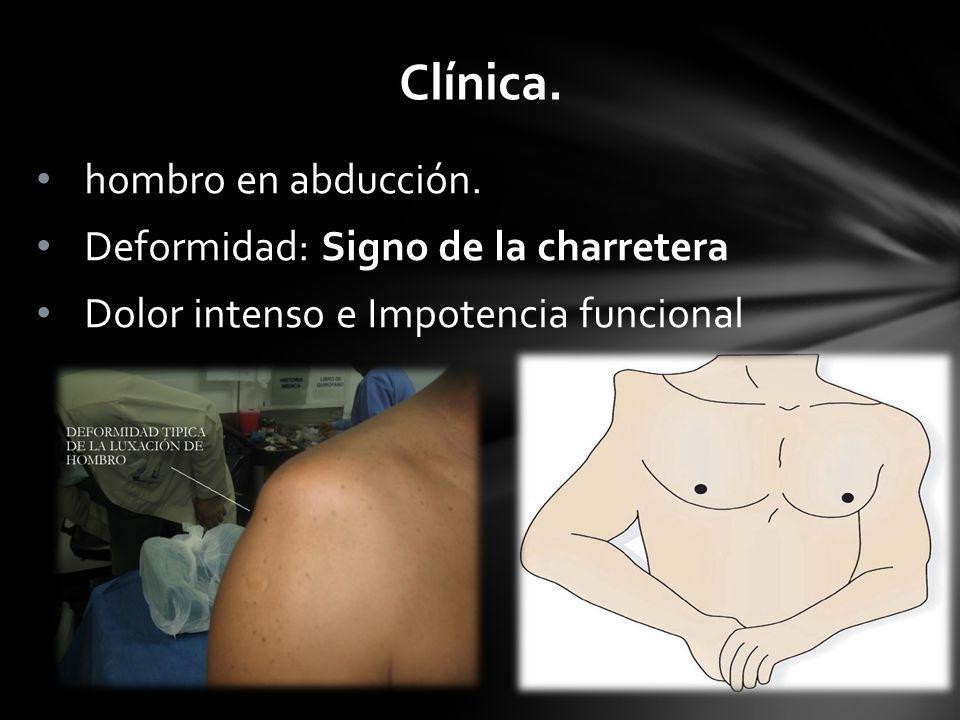 Clínica. hombro en abducción. Deformidad: Signo de la charretera Dolor intenso e Impotencia funcional