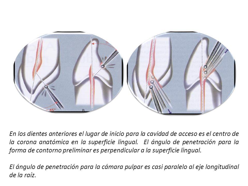 En los dientes anteriores el lugar de inicio para la cavidad de acceso es el centro de la corona anatómica en la superficie lingual. El ángulo de pene