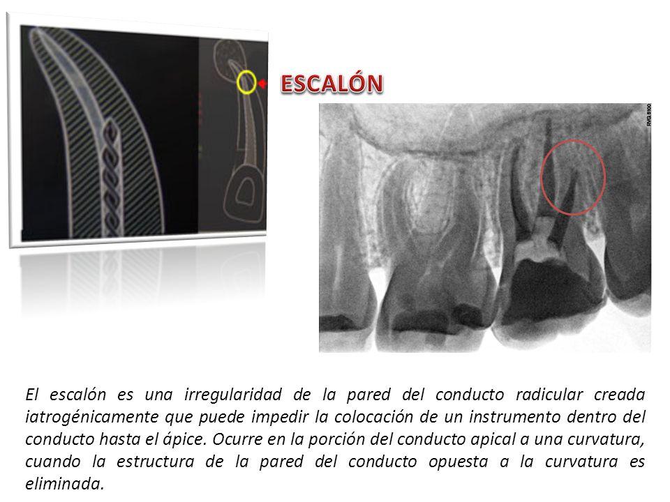 El escalón es una irregularidad de la pared del conducto radicular creada iatrogénicamente que puede impedir la colocación de un instrumento dentro de