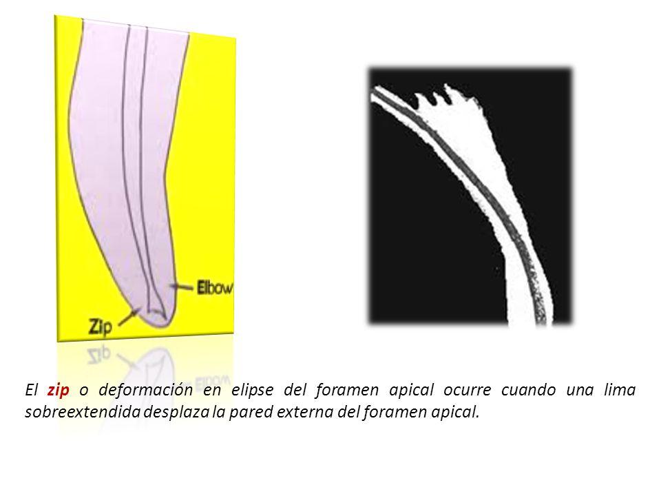 El zip o deformación en elipse del foramen apical ocurre cuando una lima sobreextendida desplaza la pared externa del foramen apical.