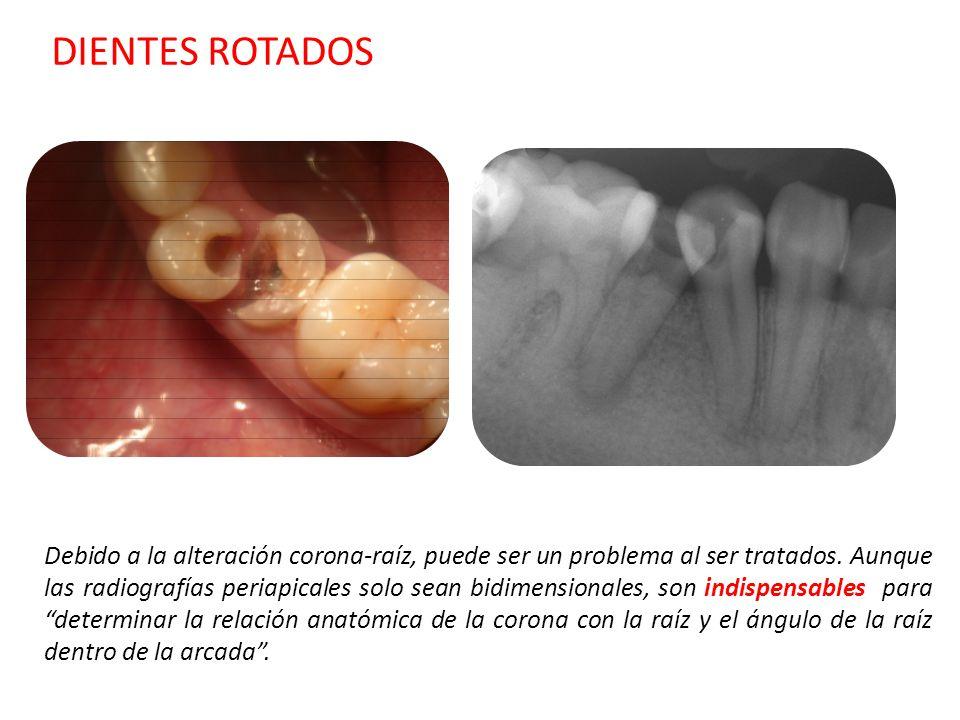DIENTES ROTADOS Debido a la alteración corona-raíz, puede ser un problema al ser tratados. Aunque las radiografías periapicales solo sean bidimensiona