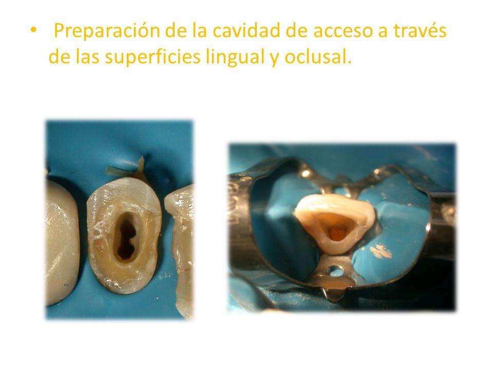 Preparación de la cavidad de acceso a través de las superficies lingual y oclusal.