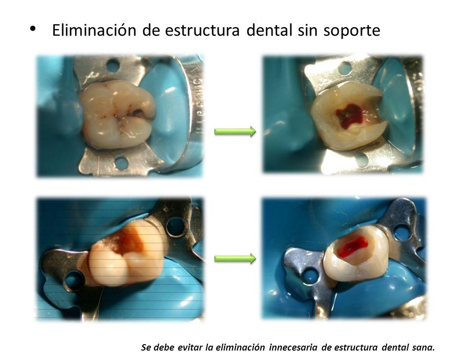 Eliminación de estructura dental sin soporte Se debe evitar la eliminación innecesaria de estructura dental sana.