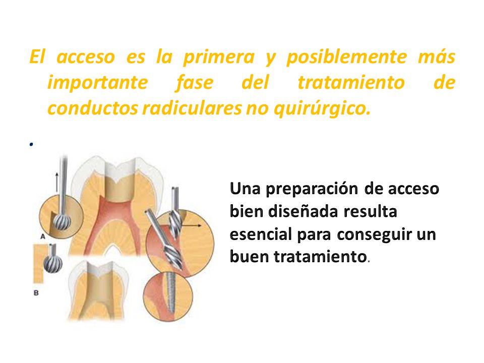 El acceso es la primera y posiblemente más importante fase del tratamiento de conductos radiculares no quirúrgico..