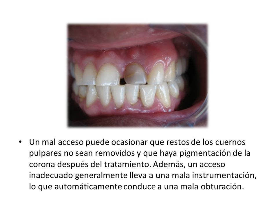 Un mal acceso puede ocasionar que restos de los cuernos pulpares no sean removidos y que haya pigmentación de la corona después del tratamiento. Ademá