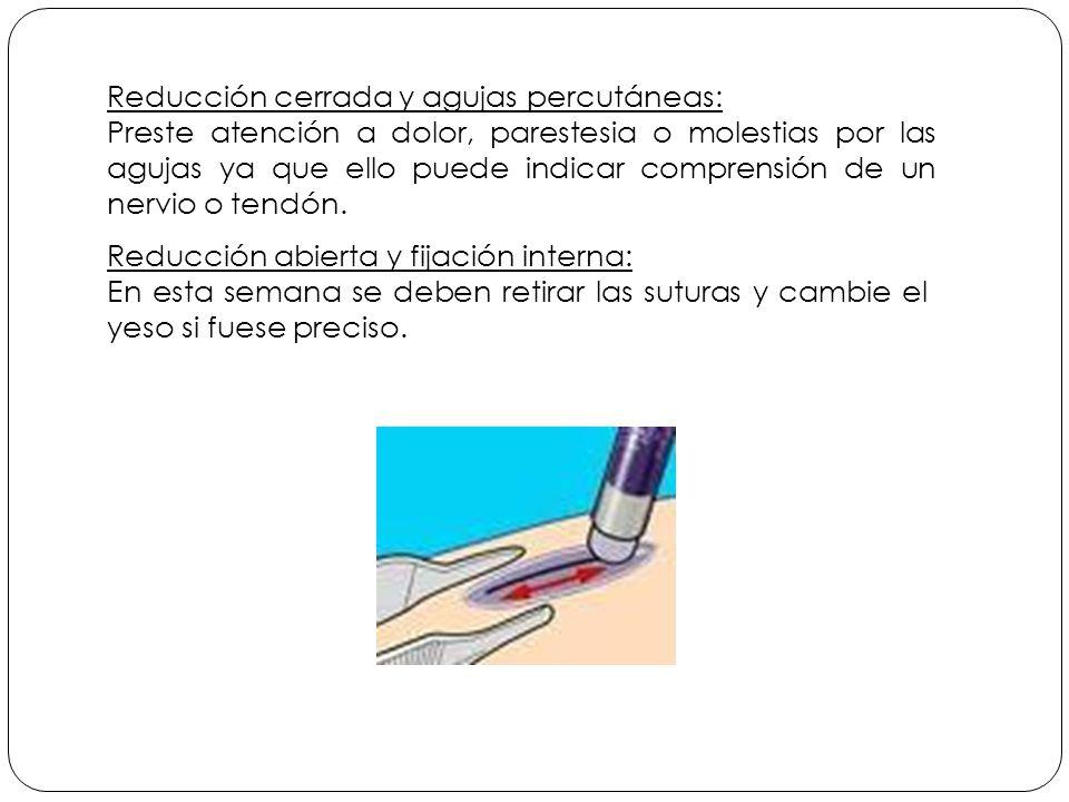 Reducción cerrada y agujas percutáneas: Preste atención a dolor, parestesia o molestias por las agujas ya que ello puede indicar comprensión de un nervio o tendón.