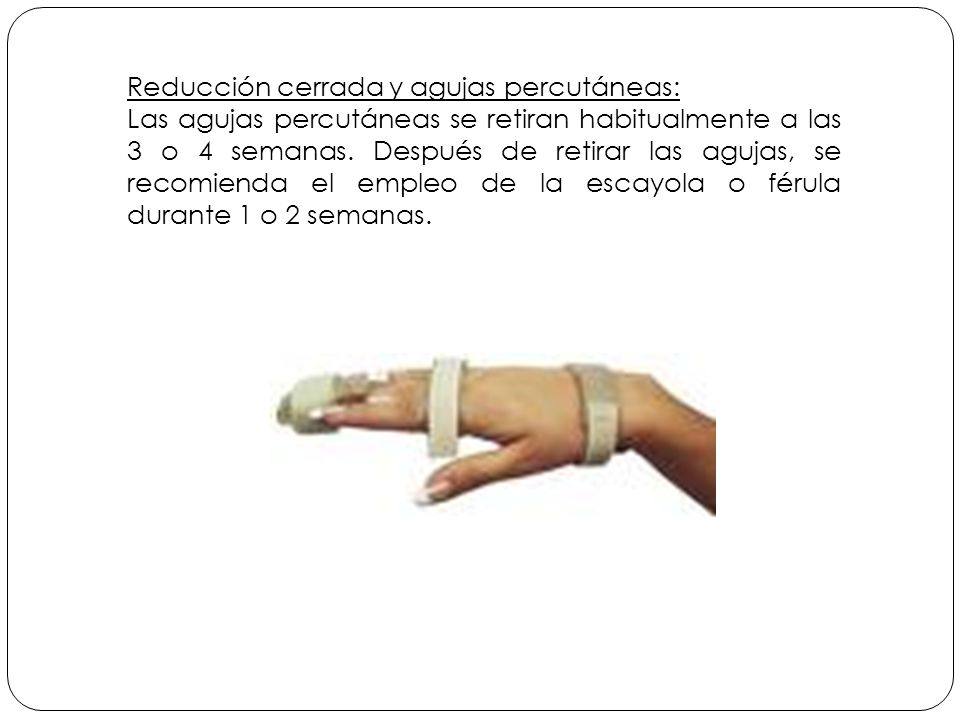 Reducción cerrada y agujas percutáneas: Las agujas percutáneas se retiran habitualmente a las 3 o 4 semanas.