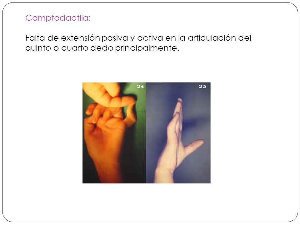 Camptodactila: Falta de extensión pasiva y activa en la articulación del quinto o cuarto dedo principalmente.