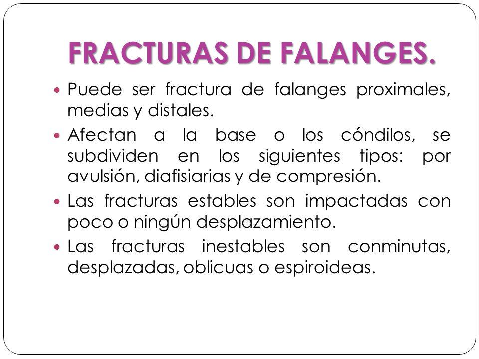 FRACTURAS DE FALANGES.Puede ser fractura de falanges proximales, medias y distales.