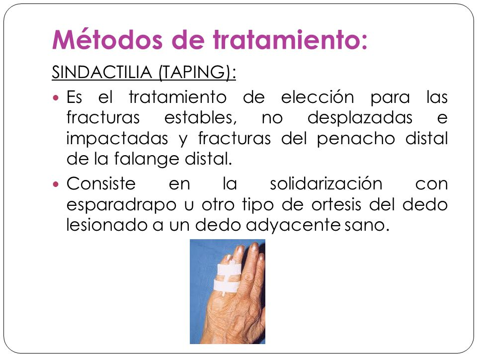 Métodos de tratamiento: SINDACTILIA (TAPING): Es el tratamiento de elección para las fracturas estables, no desplazadas e impactadas y fracturas del penacho distal de la falange distal.