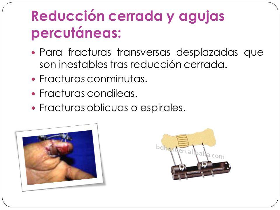 Reducción cerrada y agujas percutáneas: Para fracturas transversas desplazadas que son inestables tras reducción cerrada.
