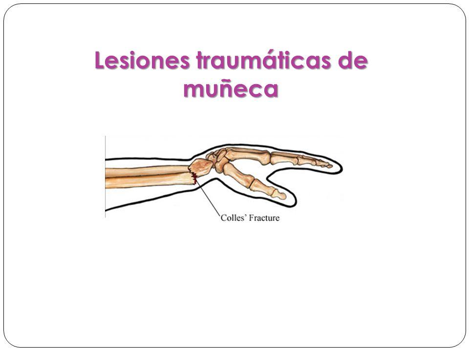 Lesiones traumáticas de muñeca
