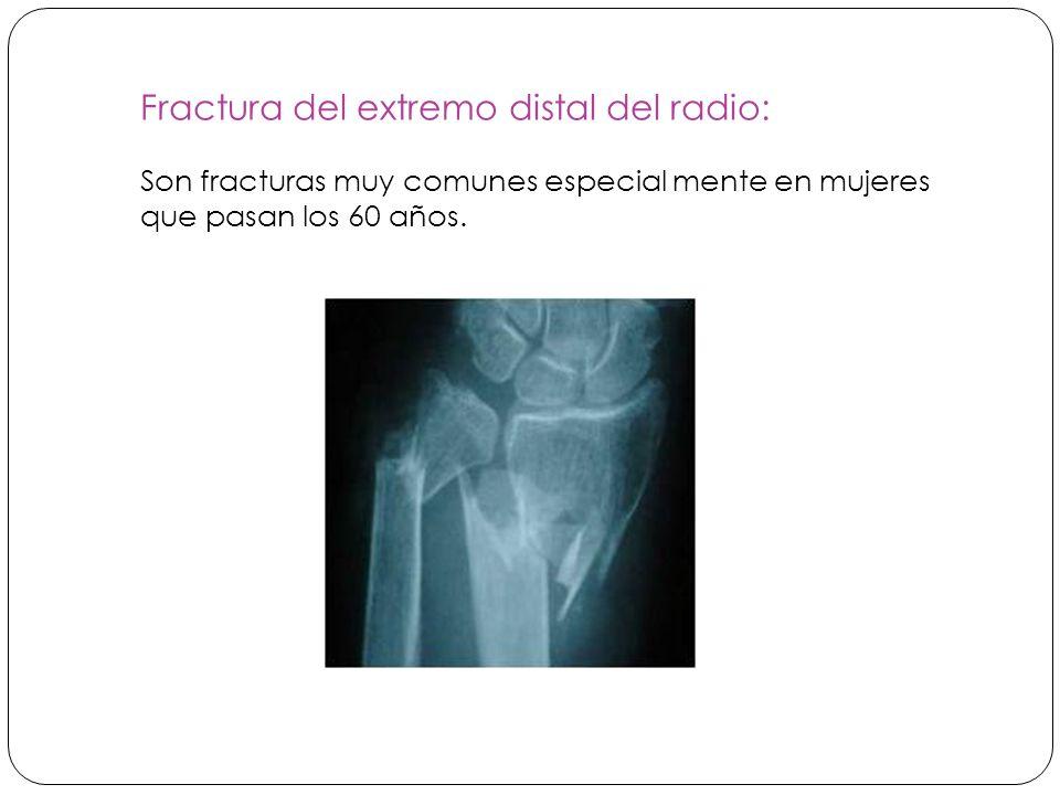 Fractura del extremo distal del radio: Son fracturas muy comunes especial mente en mujeres que pasan los 60 años.