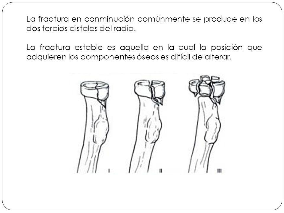 La fractura en conminución comúnmente se produce en los dos tercios distales del radio.