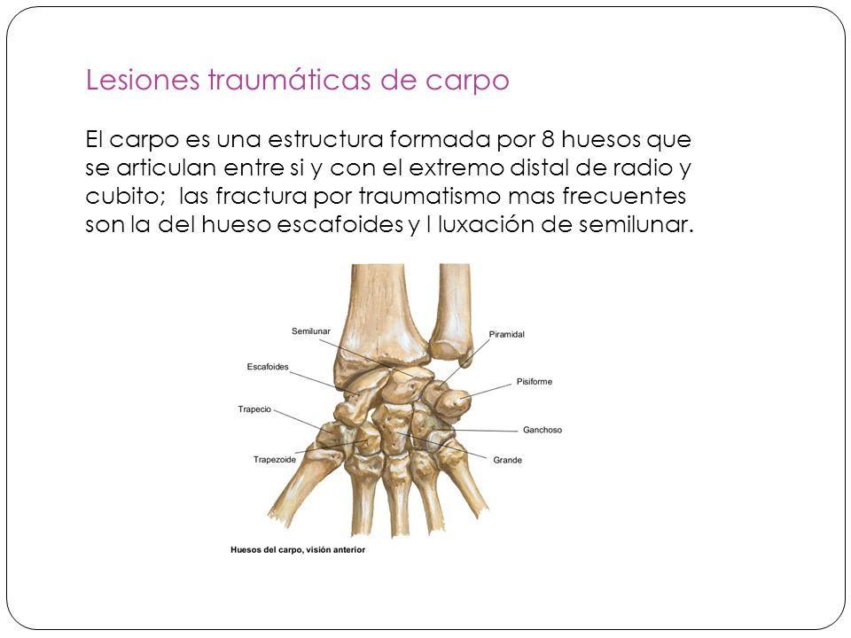 Lesiones traumáticas de carpo El carpo es una estructura formada por 8 huesos que se articulan entre si y con el extremo distal de radio y cubito; las fractura por traumatismo mas frecuentes son la del hueso escafoides y l luxación de semilunar.