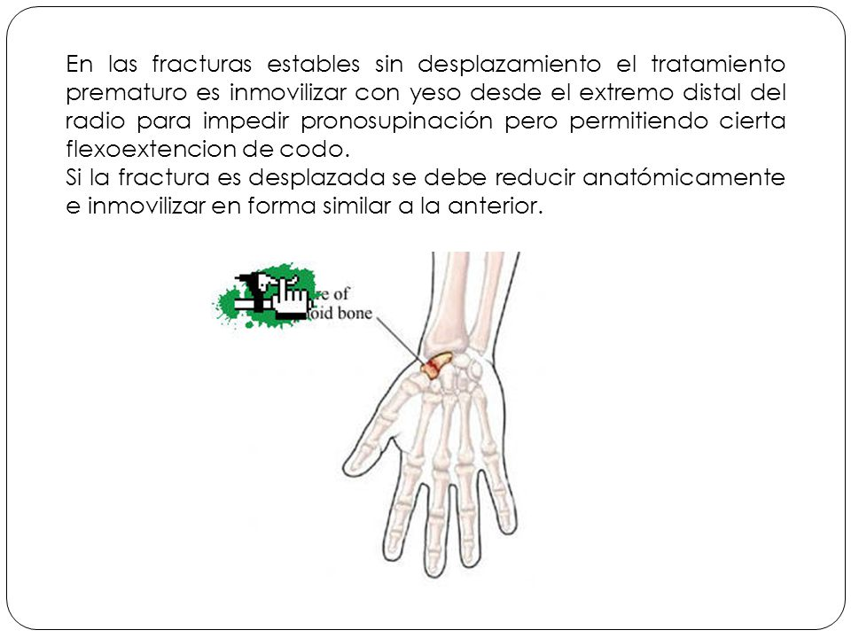 En las fracturas estables sin desplazamiento el tratamiento prematuro es inmovilizar con yeso desde el extremo distal del radio para impedir pronosupinación pero permitiendo cierta flexoextencion de codo.