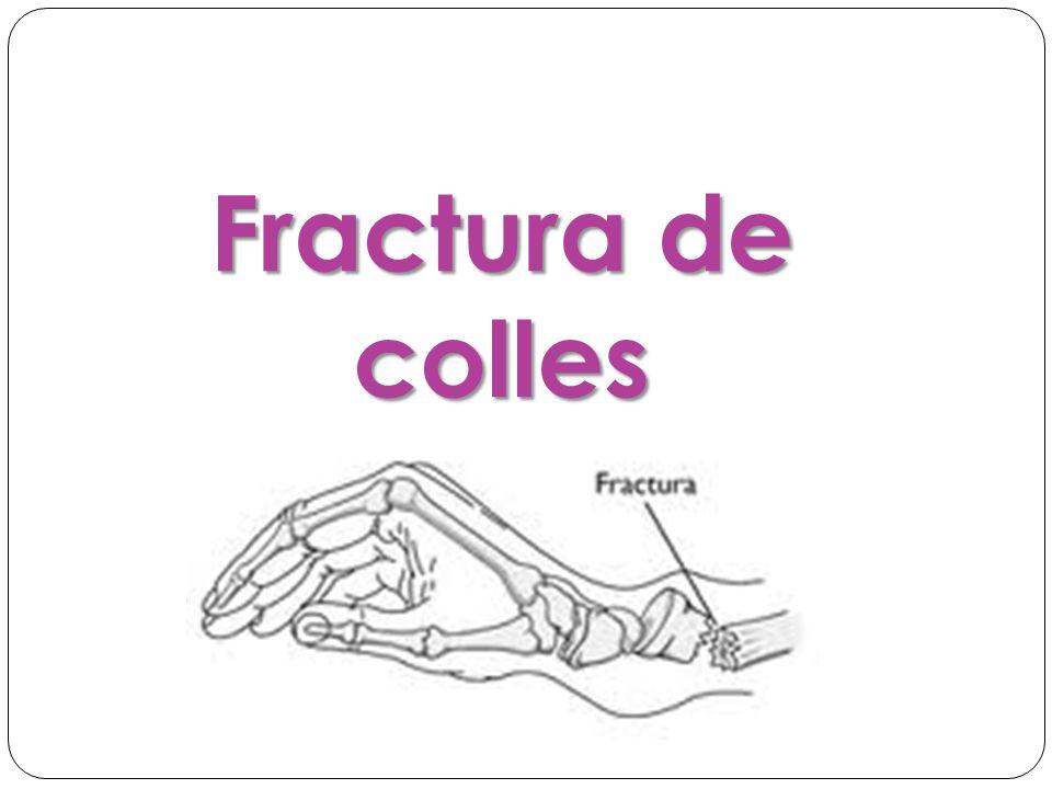 Fractura de colles