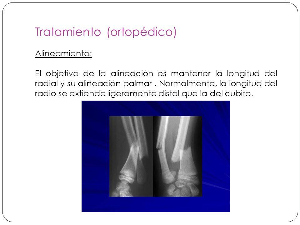 Tratamiento (ortopédico) Alineamiento: El objetivo de la alineación es mantener la longitud del radial y su alineación palmar.