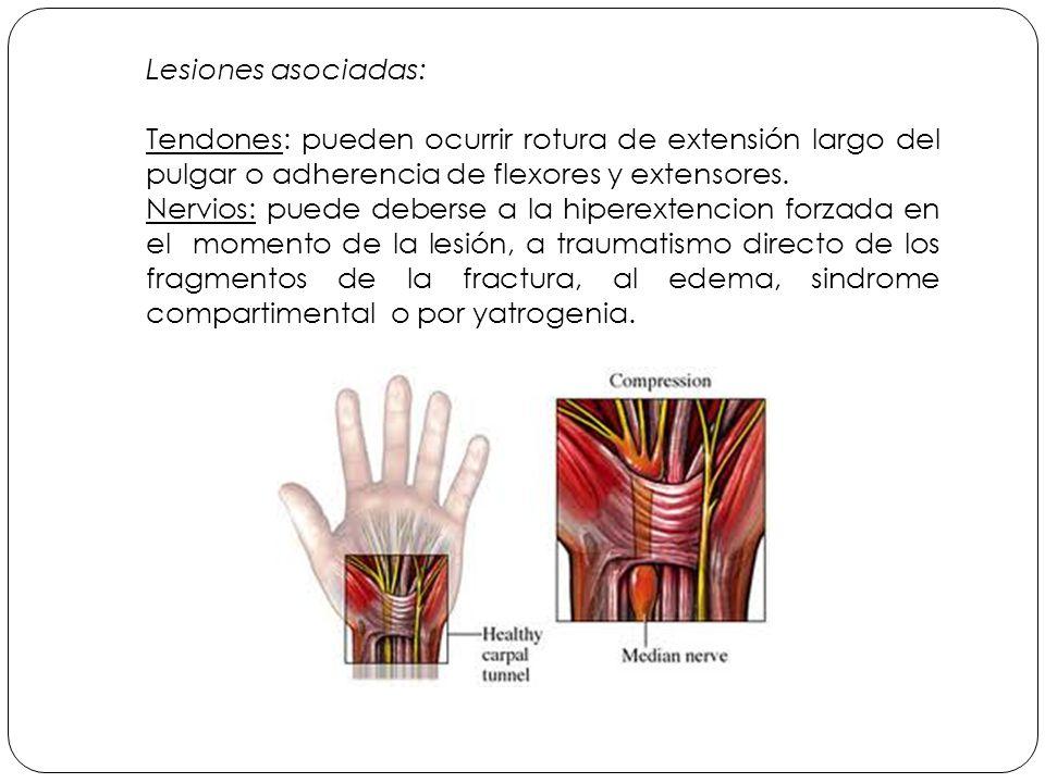 Lesiones asociadas: Tendones: pueden ocurrir rotura de extensión largo del pulgar o adherencia de flexores y extensores.