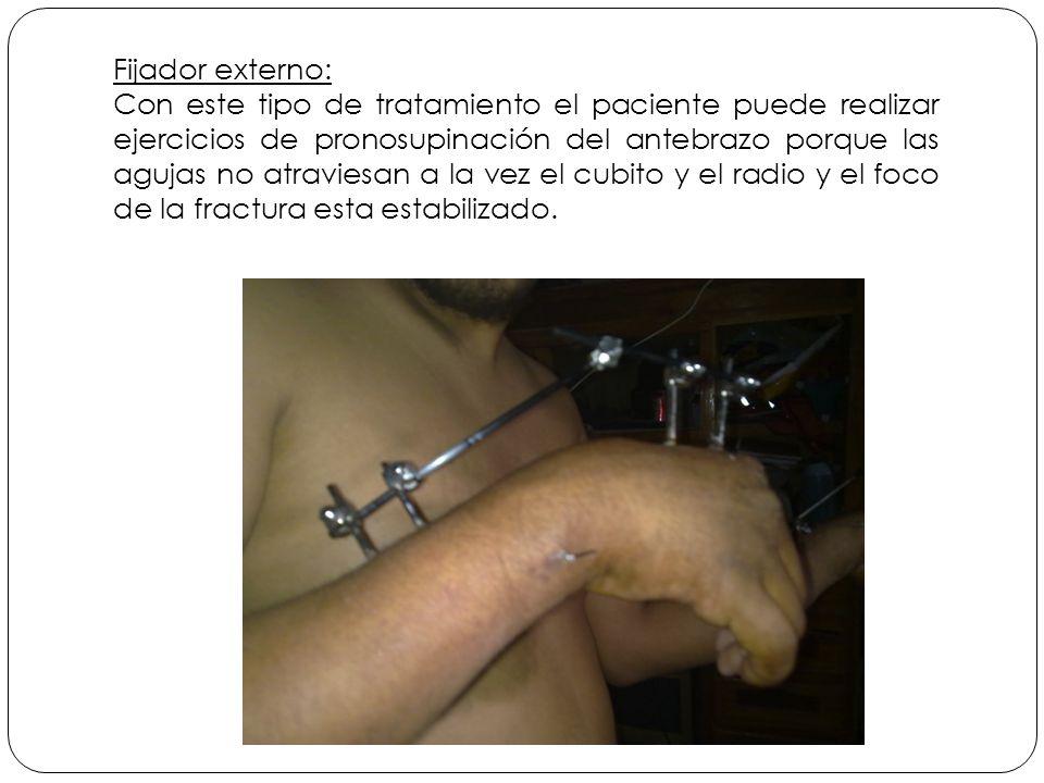 Fijador externo: Con este tipo de tratamiento el paciente puede realizar ejercicios de pronosupinación del antebrazo porque las agujas no atraviesan a la vez el cubito y el radio y el foco de la fractura esta estabilizado.