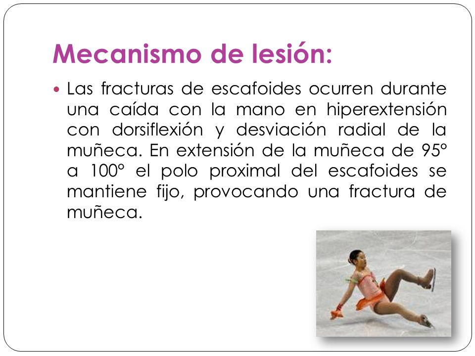 Mecanismo de lesión: Las fracturas de escafoides ocurren durante una caída con la mano en hiperextensión con dorsiflexión y desviación radial de la muñeca.